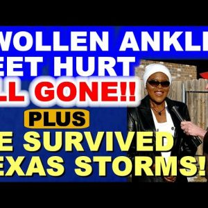 Feet Pain, Swollen Ankles - Diet Brings Solution + SURVIVING TEXAS STORM